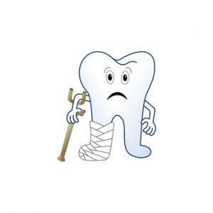 Aufbissempfindlichkeit kann eine beginnende Zahnwurzelentzündung anzeigen.