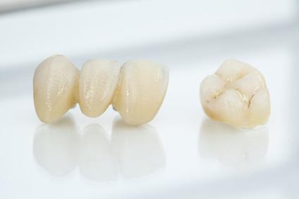 Künstliche Zähne sind nicht kariesgefährdet, müssen aber trotzdem von Belägen freigehalten werden