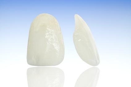 Veneers (Ästhetik einzelner Zähne)