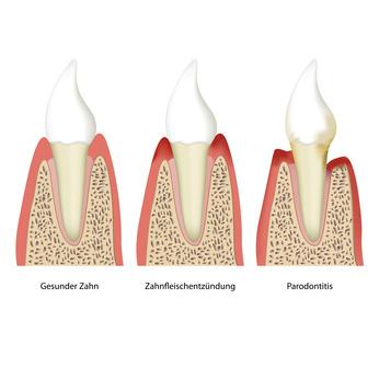 Zahnhalteapparat (Parodontium)