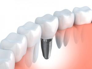 Implantate sind künstliche Zahnwurzeln aus Titan