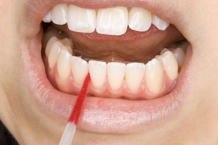 Reinigung der Zahnzwischenräume mit einer Interdentalbürste beim regelmäßigen Besuch