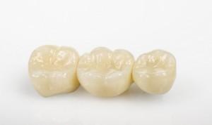 Dreigliedrige Zahnbrücke, perfekte Ästhetik durch hightech Zahnkronen