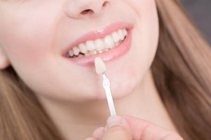 Ihr Zahnarzt wählt die zu Ihren Zähnen passende Keramik (Farbabgleich) aus