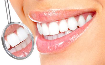 Power-Bleaching – schneller weisse Zähne