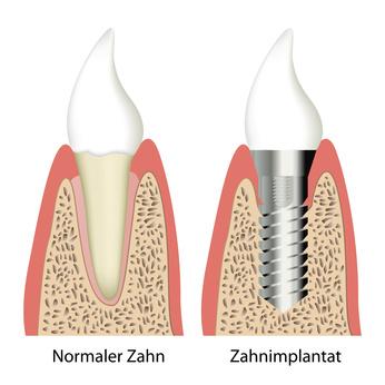 Vergleich gesunder Zahn mit Zahnimplantat